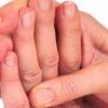 Чому німіють пальці рук: основні причини