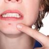 Підшкірні прищі на обличчі: що це? Причини появи підшкірних прищів