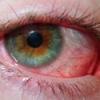 Почервоніння очей: причини, лікування