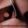 Поліпи в носі: лікування, народні засоби, як позбутися
