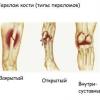 Допомога при відкритому переломі