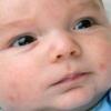 Пітниця шкіри у маленької дитини