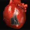 Підвищення тиску після інфаркту