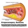 Причини атеросклерозу судин: виникнення і розвитку