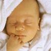 Причини і лікування желтушки у новонароджених