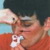 Причини носової кровотечі, лікування