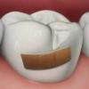 Причини розвитку карієсу зубів і профілактика