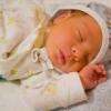 Причини розвитку жовтяниці новонароджених