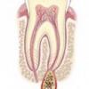 Причини виникнення і лікування кісти зуба