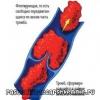 Ознаки тромб, який відірвався в організмі