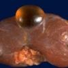 Ознаки виникнення кісти нирки