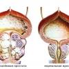 Простатиту часто супроводжує аденома