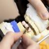 Протезування зубів без обточування
