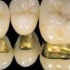 Протезування зубів за допомогою металокераміки