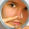 Прищі на підборідді, носі і лобі, причини виникнення