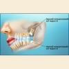 Ріжуться зуби мудрості - симптоми, що робити?