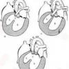Найпоширеніші вади серця у дітей