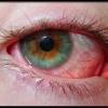 Симптоми почервоніння очного яблука