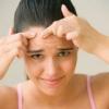 Способи лікування акне в зрілому віці