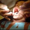 Стоматит: лікування в домашніх умовах