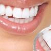 Стоматит у дорослих: чим і як лікувати стоматит в роті?