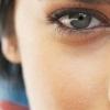 Темні кола під очима: причини і лікування