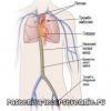Тромбоемболія -   симптоми, лікування, невідкладна допомога, причини