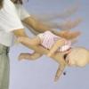 У дитини в дихальних шляхах чужорідне тіло