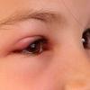 Вкусила мошка в око - чим зняти набряк? Як прибрати набряк очей після укусу комара і бджоли?