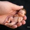 Жахливі наслідки аборту