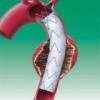 Види аневризми і симптоми її розвитку