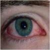 Запалення очі - симптоми, причини, види