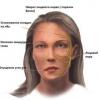 Запалення трійчастого нерва на обличчі - лікування