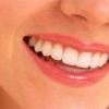 Відновлення пошкоджених карієсом зубів