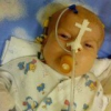 Вроджена діафрагмальна грижа у дітей