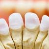 Все про зубних коронках