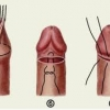 Навіщо і чому роблять обрізання? Циркумцизія