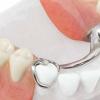 Зубні протези без неба